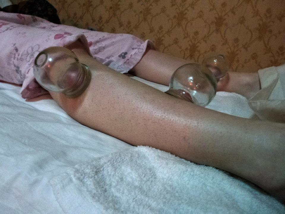 Cupping therapy 2 unusual beijing